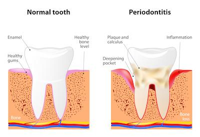 a diagram of unhealthy gums | family dentist chattanooga tn