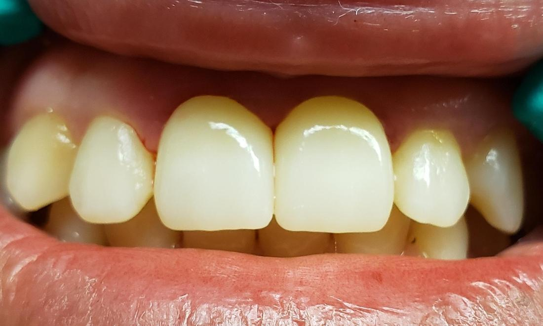After picture when the crowns were cemented on the two front teeth