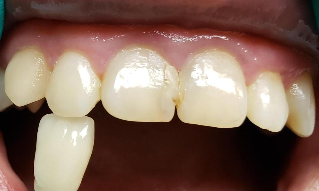 Before picture with large composite restorations that were breaking down